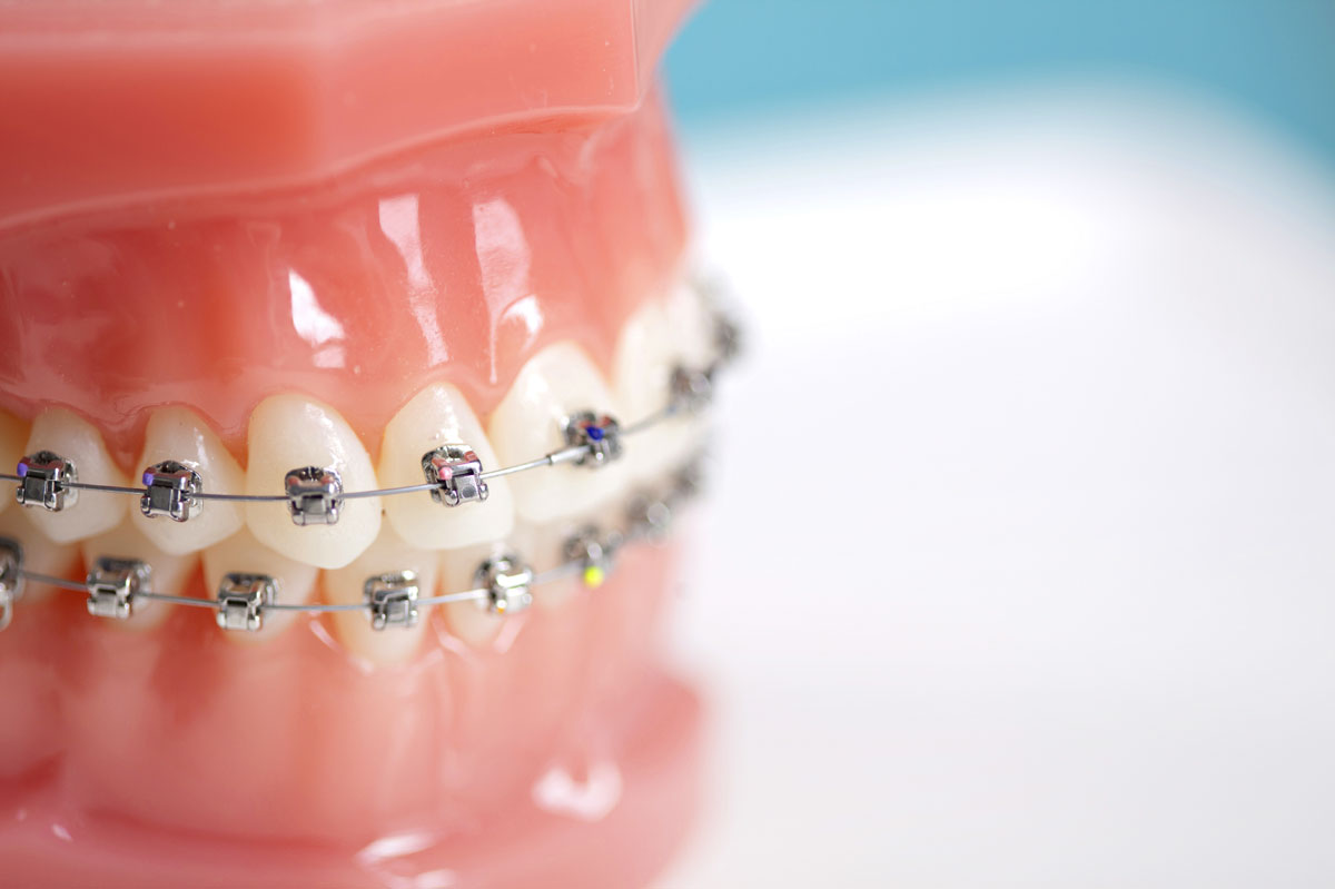 Исправление прикуса зубов в Москве